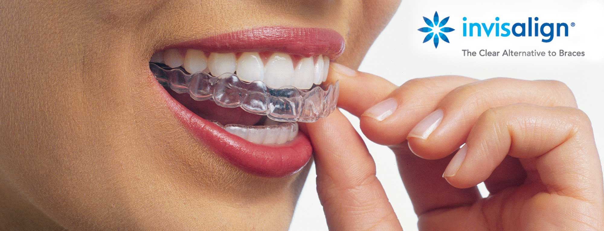 Invisalign - Clear Dental Aligners